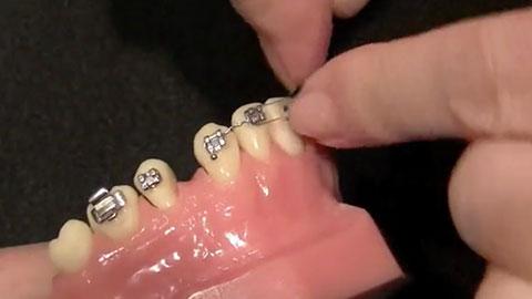 """""""Figure 8"""" Anterior Teeth"""